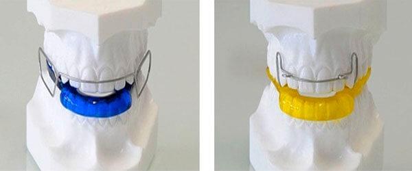 выравнивание зубов с помощью аппарата брюкля