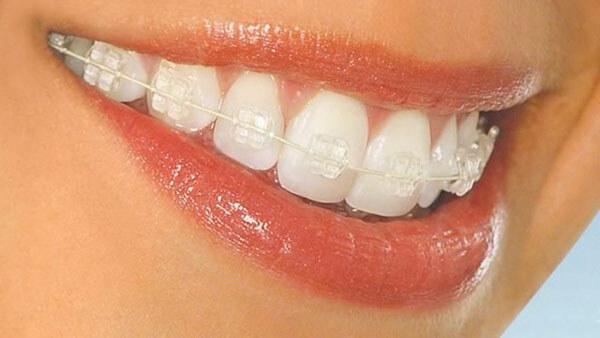 вид безлигатурных брекетов на зубах