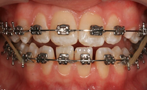 металлическая брекет система на обе челюсти