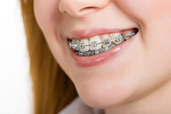 вид металлических вестибулярных брекетов на зубах