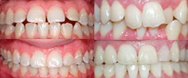 зубы после брекетов pure