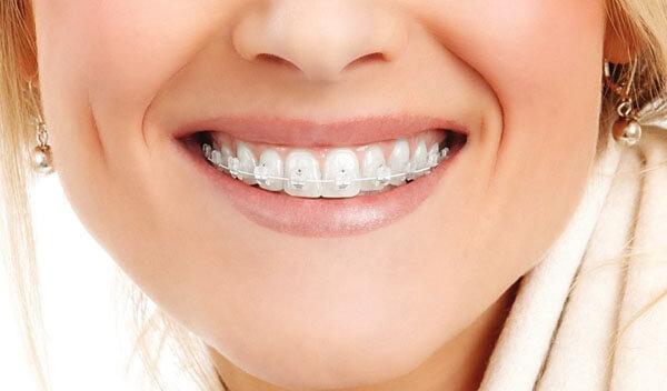 вид лигатурных брекетов на зубах