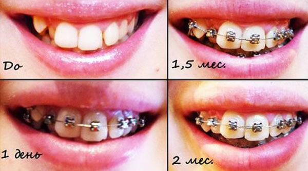 металлические брекеты на зубах