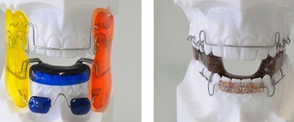 пластины для выравнивания зубов с дугой ретракционного типа