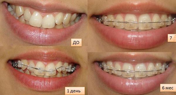 выпрямление зубов сапфировыми брекетами