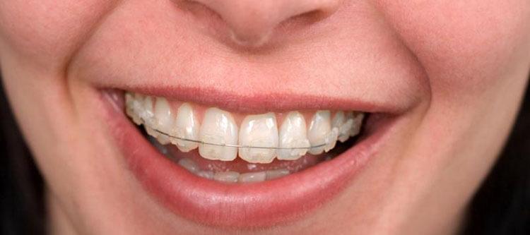 фото сапфировых брекетов на белых зубах