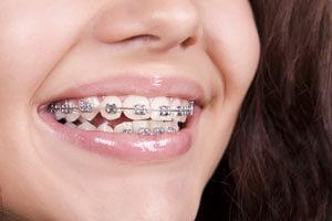 брекеты вестибулярного типа на зубах