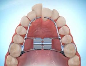 вид пластины установленной на зубы