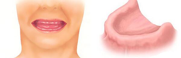 отсутствие зубов- адентия