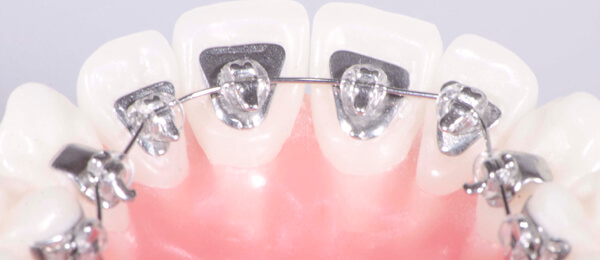 брекет-система WIN на зубах