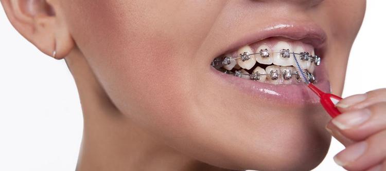 как чистить зубы с брекетами: особенности и технология