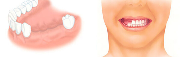 частичное отсутствие зубов