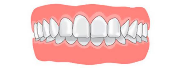 так выглядит глубокий прикус зубов
