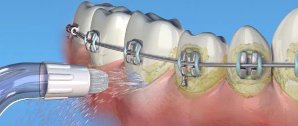 ирригатор для очистки зубов с брекетами