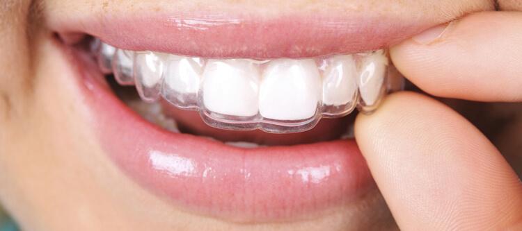вид каппы Invisalign на белых зубах