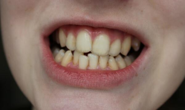 пример искривления зубов