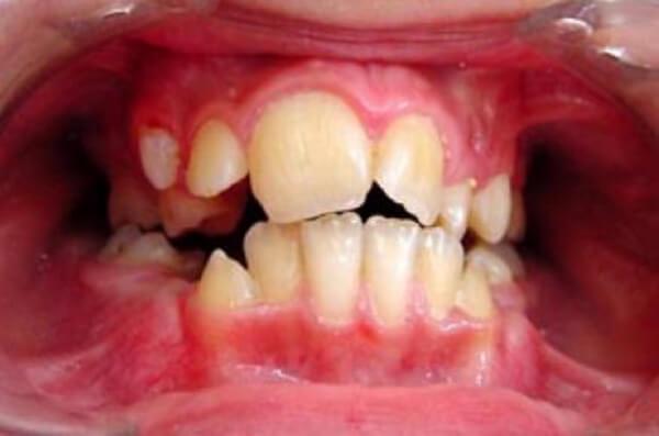 на фото макродентия зубов