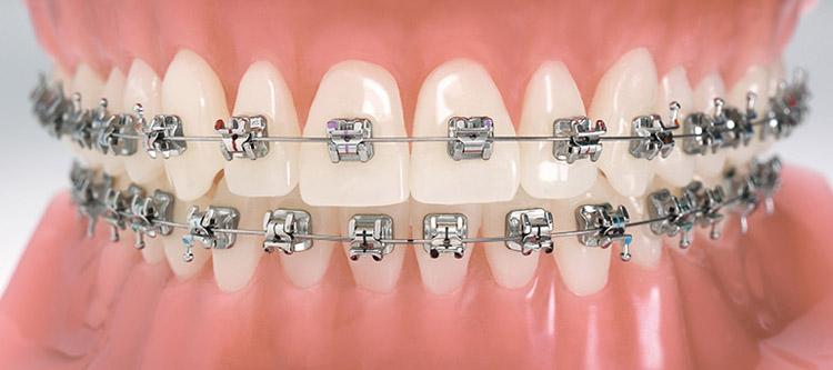 металлические брекеты на зубах: фото