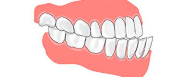 это мезиальный прикус зубов