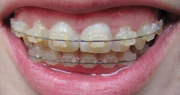 конструкция mystique на зубах