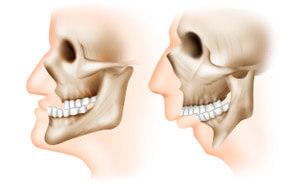 пример недоразвития верхней и нижней челюсти