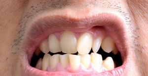 к чему приводит неправильный прикус зубов?