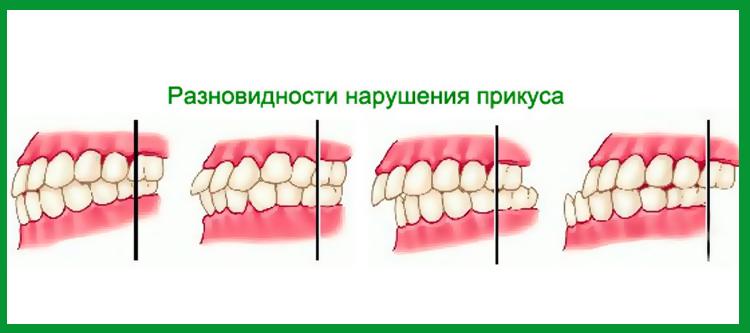 на фото изображены виды неправильного прикуса зубов
