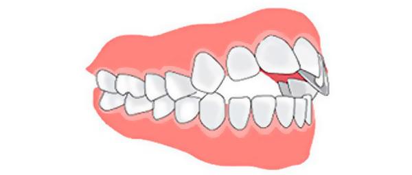 это открытый прикус зубов