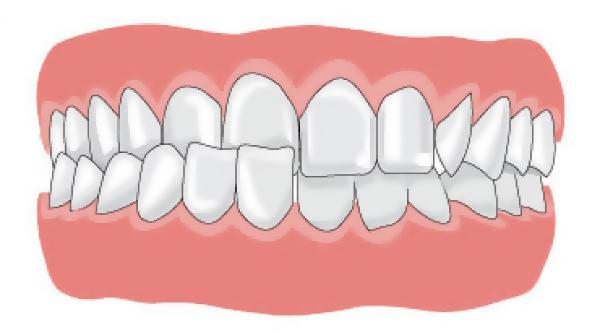 вид перекрестного прикуса зубов