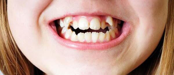 неправильный прикус последствия,последствия неправильного прикуса зубов,последствия неправильного прикуса у взрослых,неправильный прикус последствия фото,последствия неправильного прикуса,последствия неправильного прикуса у детей,последствия неправильного прикуса у ребенка,взрослые,дети,неправильный прикус,последствия