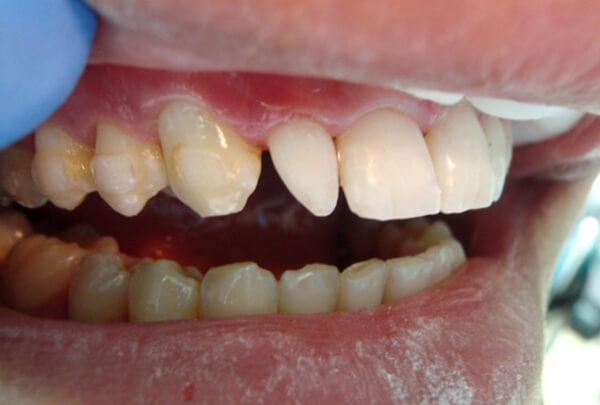 шиловидные зубы вид сбоку