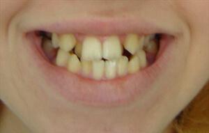 так выглядит скученность зубов