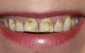 последствия неправильного прикуса: стирание эмали зубов