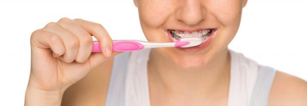 очистка зубов в брекетах