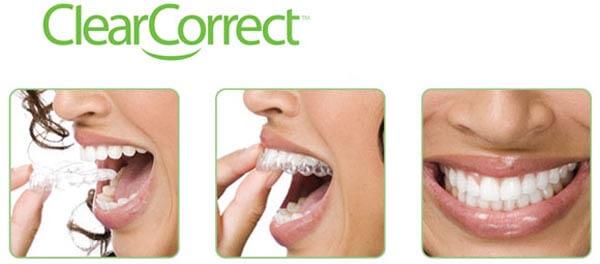 каппы Clear Correct для выравнивания зубов