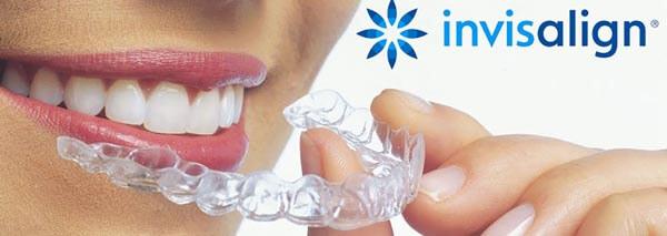 капы Invisalign для выравнивания зубов