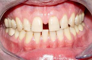 широкая диастема верхнего ряда зубов
