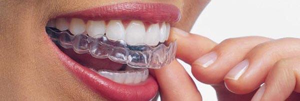 капы полиуретановые для выравнивания зубов