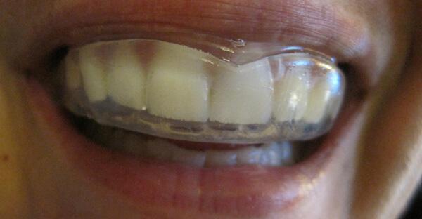 стандартные капы для выравнивания зубов