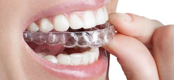 капы индивидуальные для выравнивания зубов