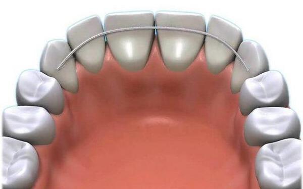 несъёмный ретейнер с внутренней стороны зубов
