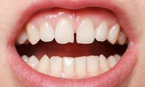 вид щели между верхними зубами