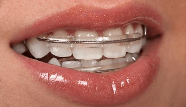 вид ретейнера на две челюсти