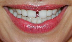 так выглядит щель между передними зубами