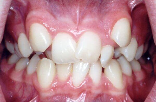 Разновидности дистопии зубов
