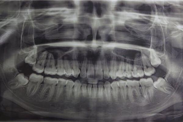 Способы диагностики дистопии зубов