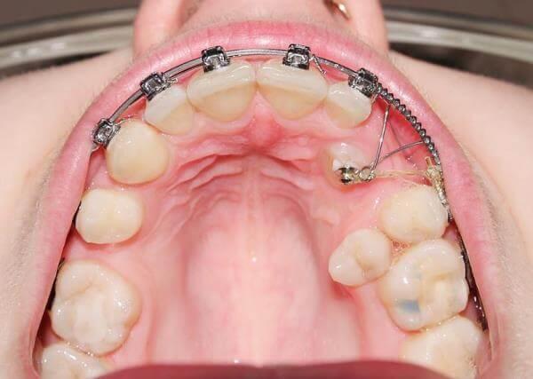 Лечение дистопии зубов брекетами