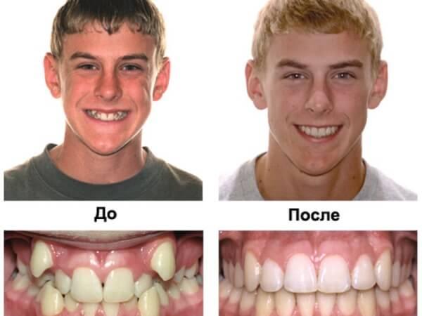 Результаты лечения вестибулярной дистопии