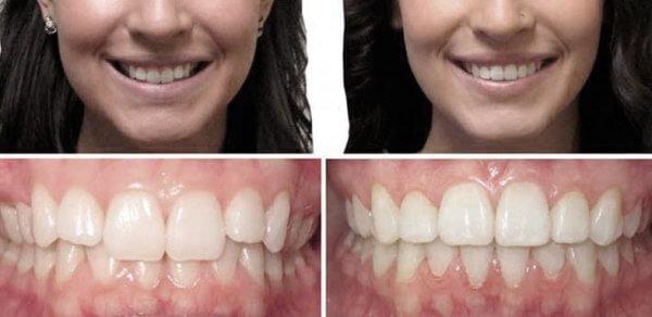 Фото глубокого прикуса до и после лечения