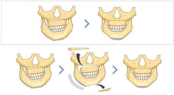 Последовательность хирургического исправления асимметрии челюстей